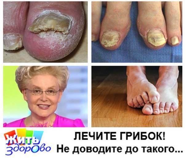 Препарат от грибка на ногах между пальцами