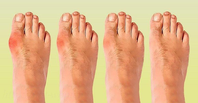 Накладки на шишки на ногах  Pillzru