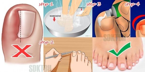 Как убрать вросший ноготь на ноге