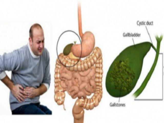 Воспаление желчного пузыря диета